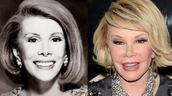 Mourning The Loss Of An Entertainment Legend, JOAN RIVERS R.I.P. (1933-2014)